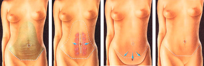 Scars after tummy tuck operation